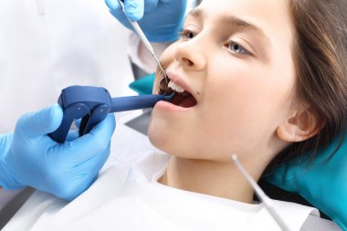 Seal Light-cure, the child in the dental office