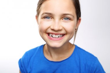 Beautiful smile, orthodontics.