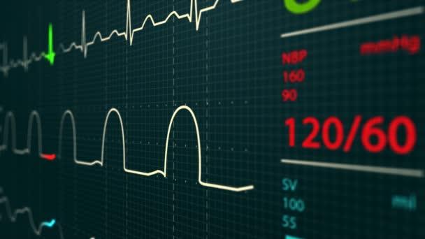 jednotka intenzivní péče monitor