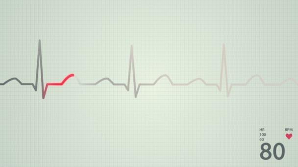 Heart rate diagram.