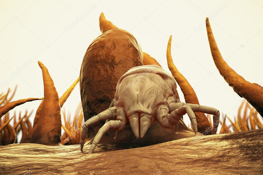 3d Render Of Dust Mite. Allergy House Hygiene Bed