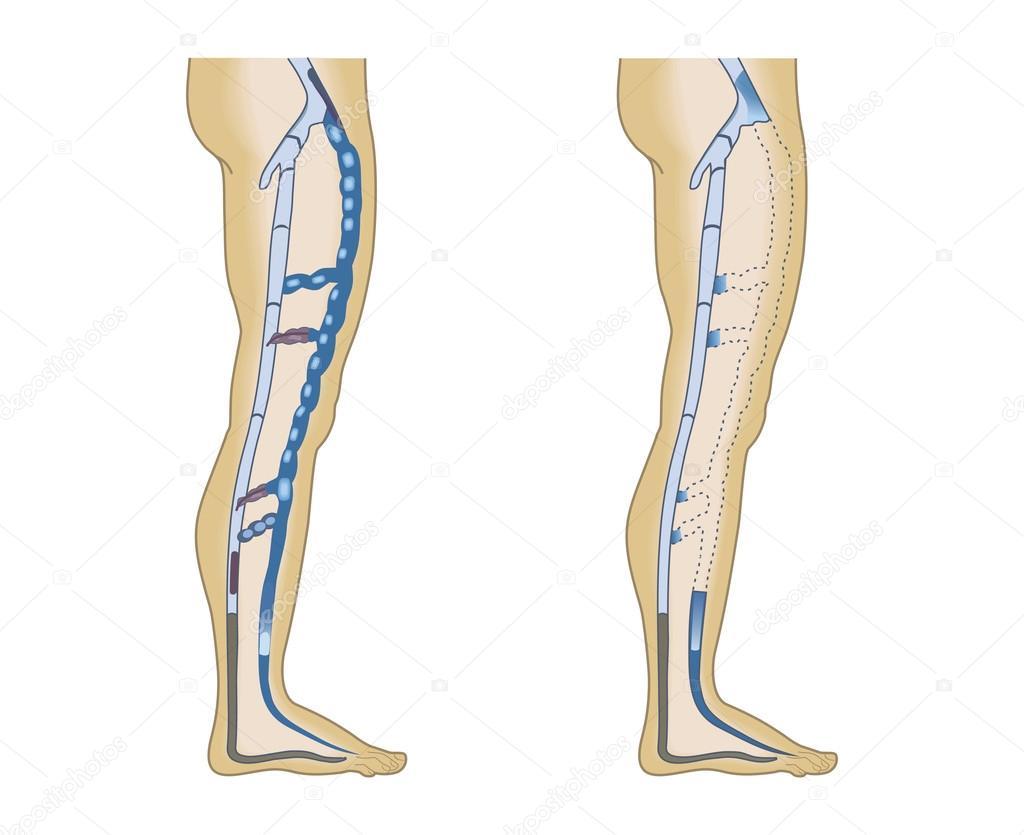 venas de la pierna de ilustración sobre un fondo blanco — Archivo ...