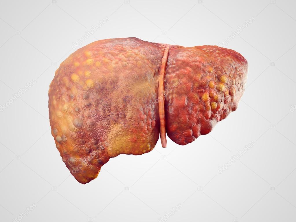 Realistische Darstellung der menschlichen Leber Zirrhose — Stockfoto ...