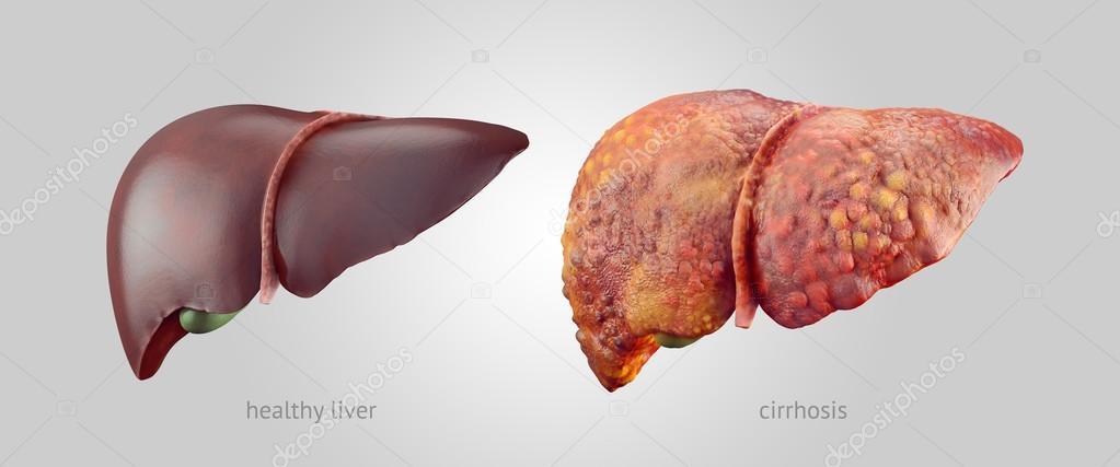 aids treatment liver damage - 900×470