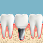 Fotografie Human teeth and Dental implant