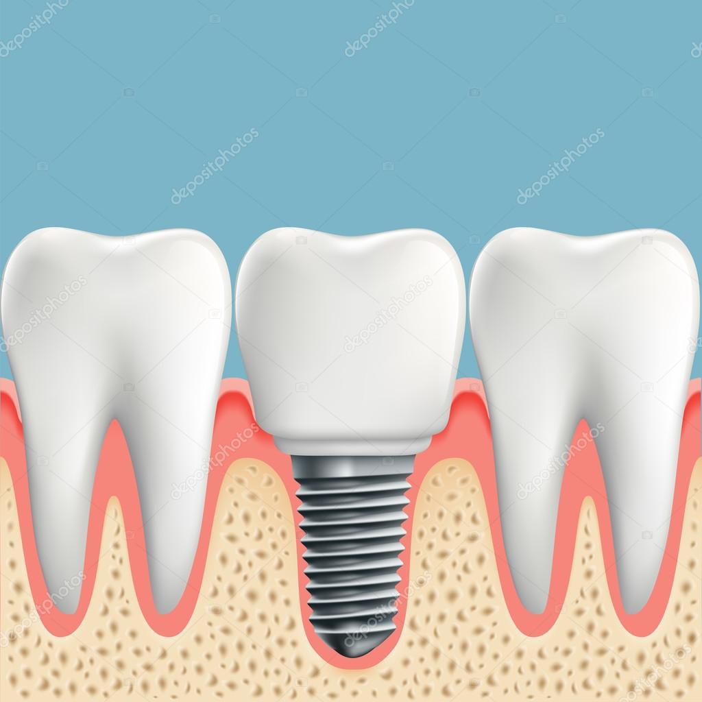 Los dientes humanos e implantes dentales — Vector de stock © vantuz ...