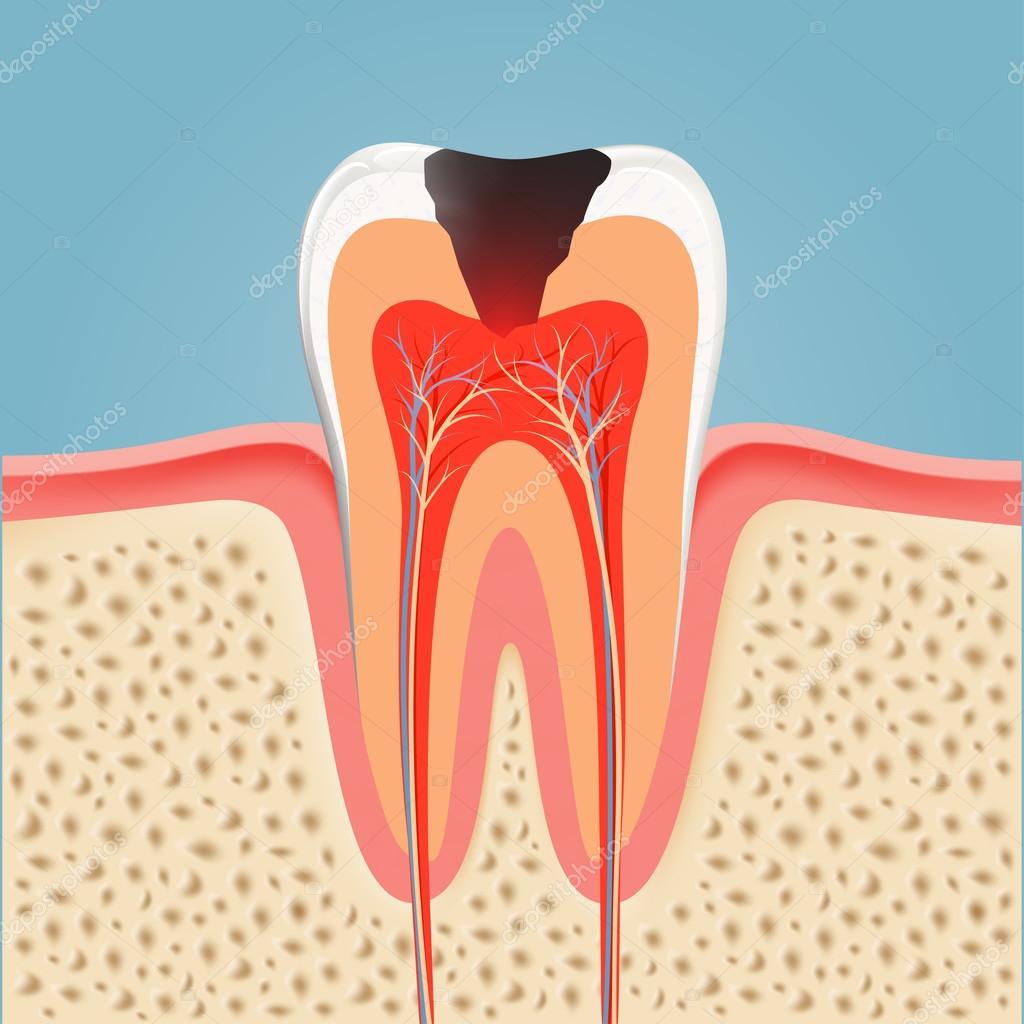 menschlichen Zahn mit Karies — Stockvektor © vantuz #112031816