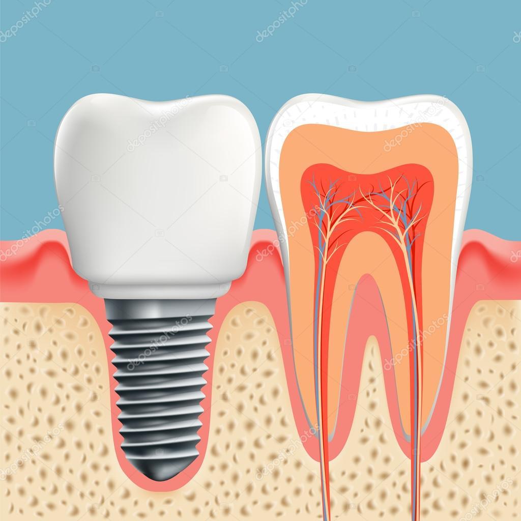 Implantes dentales y dientes humanos — Archivo Imágenes Vectoriales ...