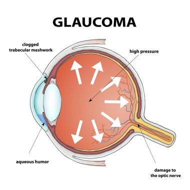 Human eye. Disease glaucoma. Stock Vector illustration. stock vector