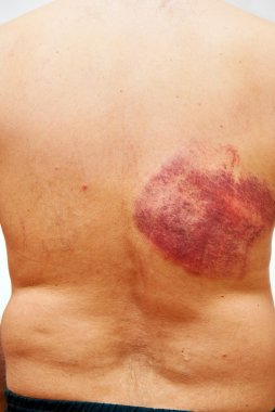 Hematoma on a back