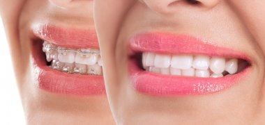 Beautiful teeth after braces treatment