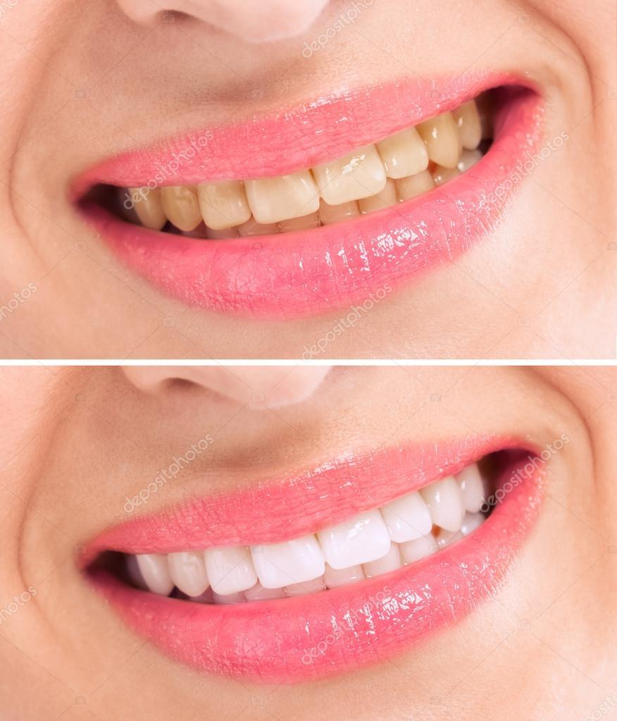 Antes E Depois Do Clareamento Dos Dentes Tratamento Fotografias De