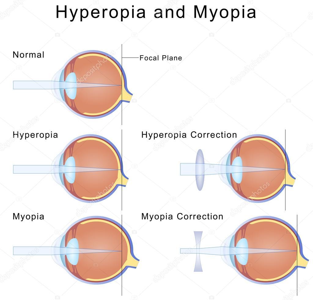 Illustration de la myopie et l hypermétropie condition des yeux et leur  correction — Vecteur par mrhighsky 555ba9d25c97