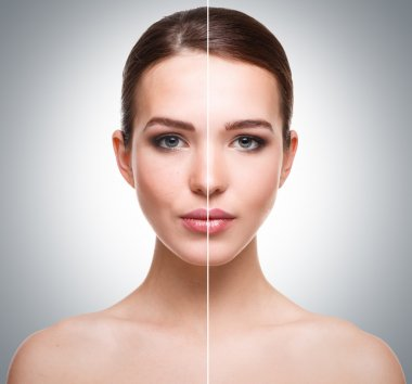 Face before and after retouch
