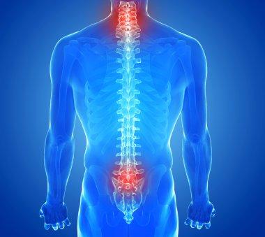 X-ray view of Spine pain - vertebrae trauma
