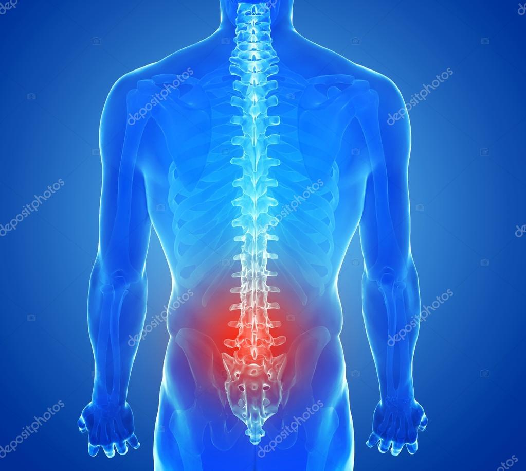 Röntgen-Ansicht der Wirbelsäule Schmerzen - Wirbel-trauma ...