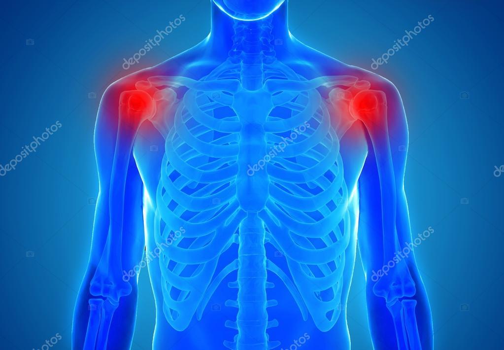 Anatomie der menschlichen Schultergelenke - Verletzung-Konzept ...