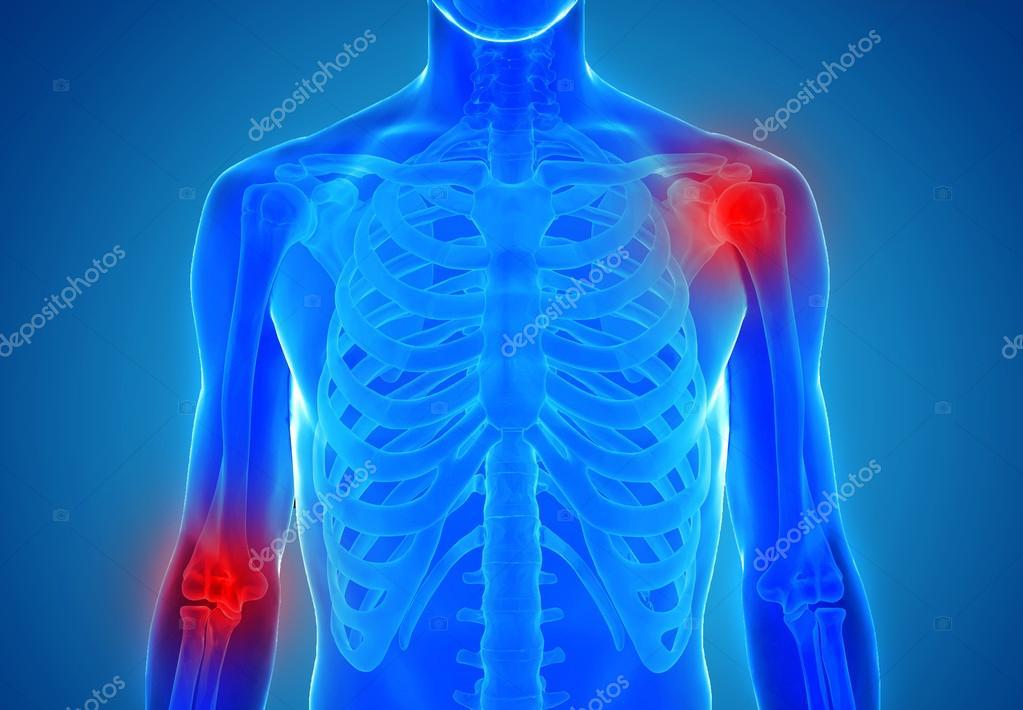 Anatomie der menschlichen Gelenke - Verletzung-Konzept — Stockfoto ...