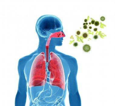 Pollen allergy, hay fever or influenza infection
