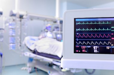 Monitor as a concept of clock surveillance of the patient in the