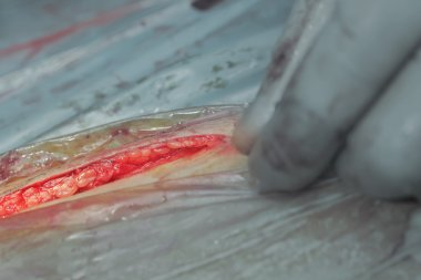 Dissection of the skin during surgery