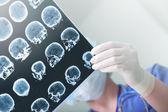 Lékařští experti studoval Eeg stavu pacienta
