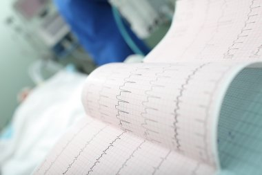 ECG interpretation in the intensive care