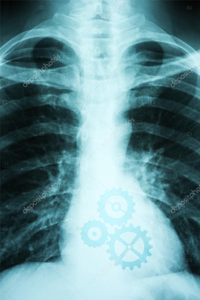 X-ray Foto des menschlichen Herzens — Stockfoto © radub85 #63796973