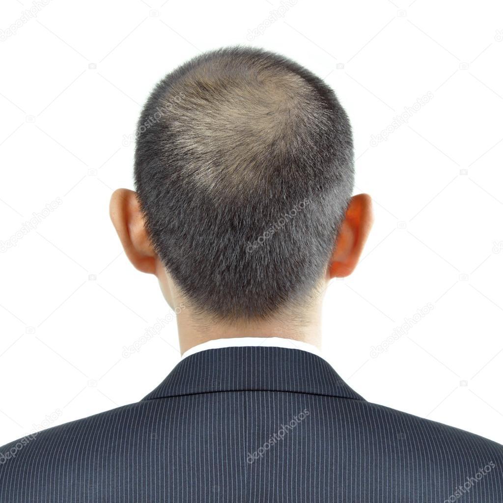 Haare Ausdünnen Symptom Auf Eine Mann Kopf Anzeichen Für