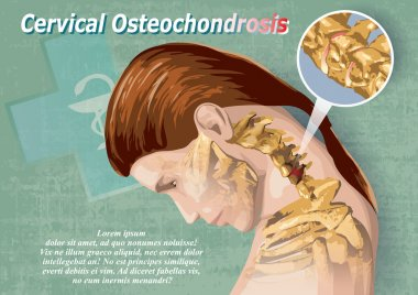 The Cervical Osteochondrosis