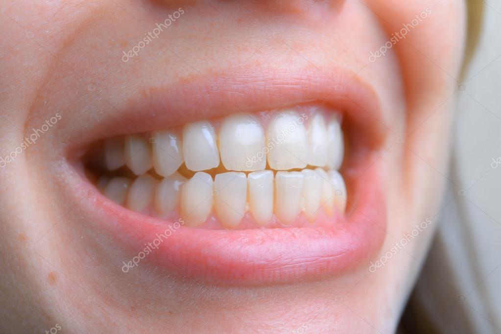 Feche De Dentes Saudaveis De Jovem Cuidados De Saude Dentarios Hy