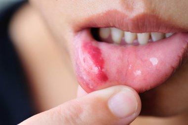 Woman showing lip injury