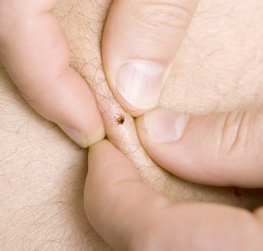 removing a tick from skin