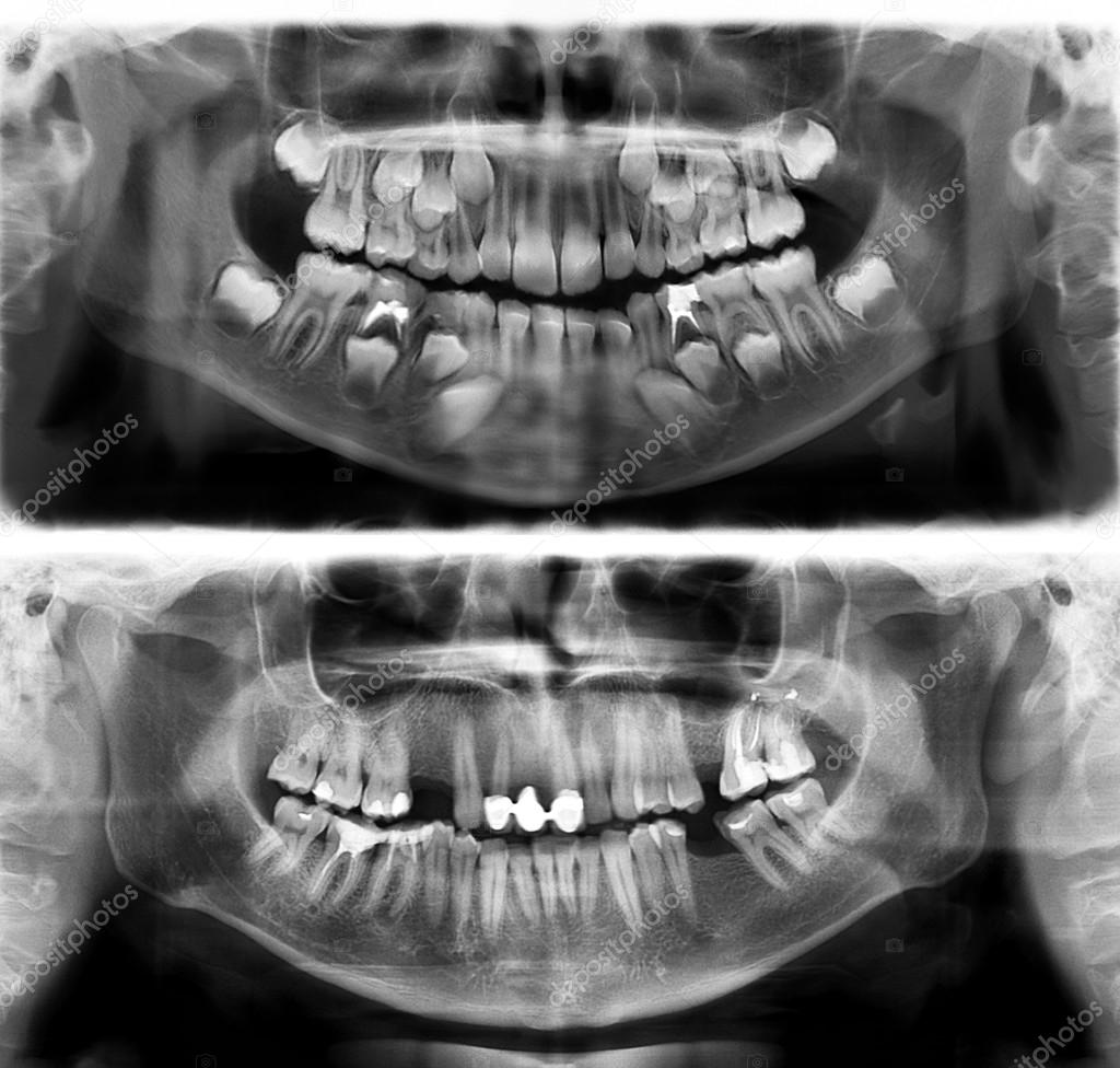 Panoramic dental x-ray tooth\'s of young man of 30 thirty and child ...