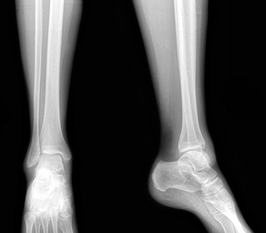 Real x-rays of the healthy lower leg - front and side view