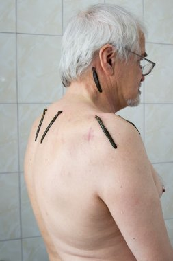 Treatment with leeches shoulder and neck area, back area in the