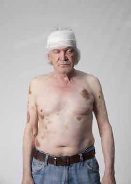 Bandits mutilated man