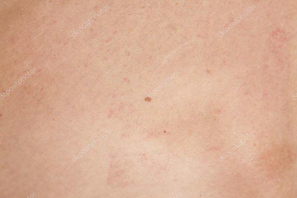 skivepitelcancer huden bilder