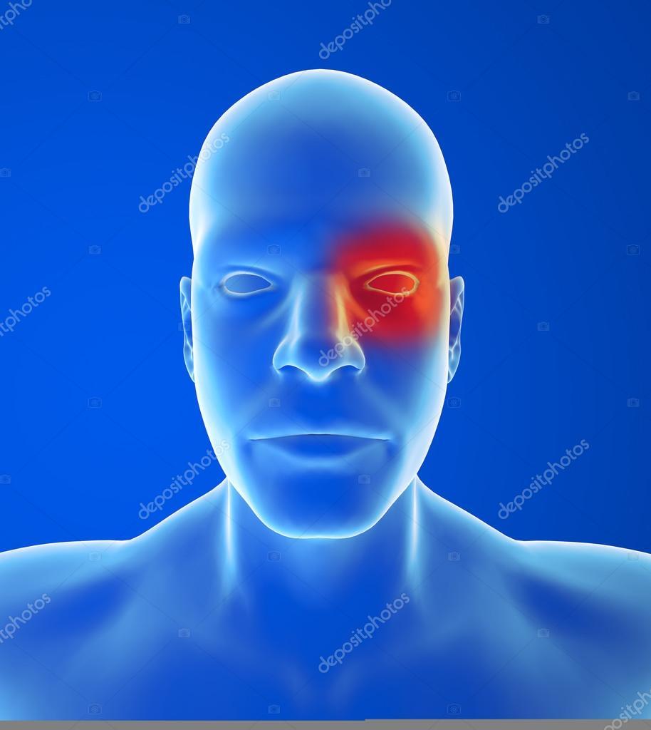 hortons huvudvärk symptom