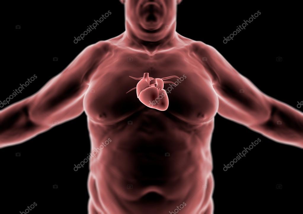 persona gorda, corazón, cuerpo humano 3D, anatomía — Foto de stock ...