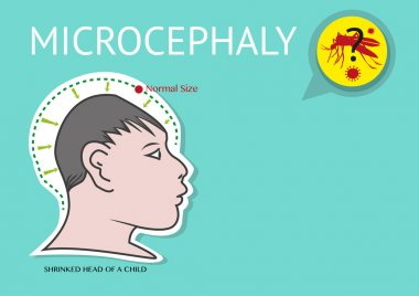 Microcephaly or abnormal smallness of the head linked to Zika Virus.
