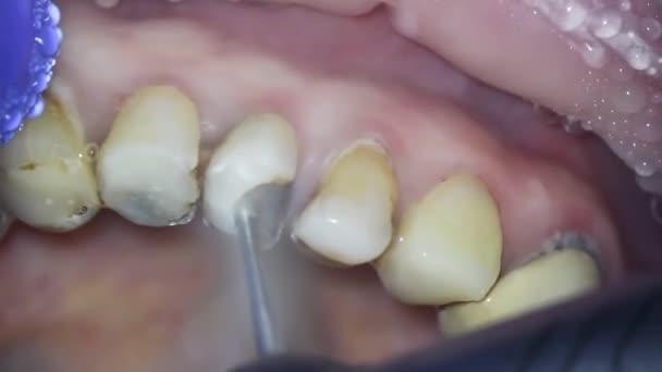 Zahnmedizin. Aufnahmen mit dem Mikroskop. Nekrektomie. der Zahnarzt entfernt die alte Füllung mit speziellen Werkzeugen und bearbeitet das beschädigte Zahngewebe, indem er sie entfernt