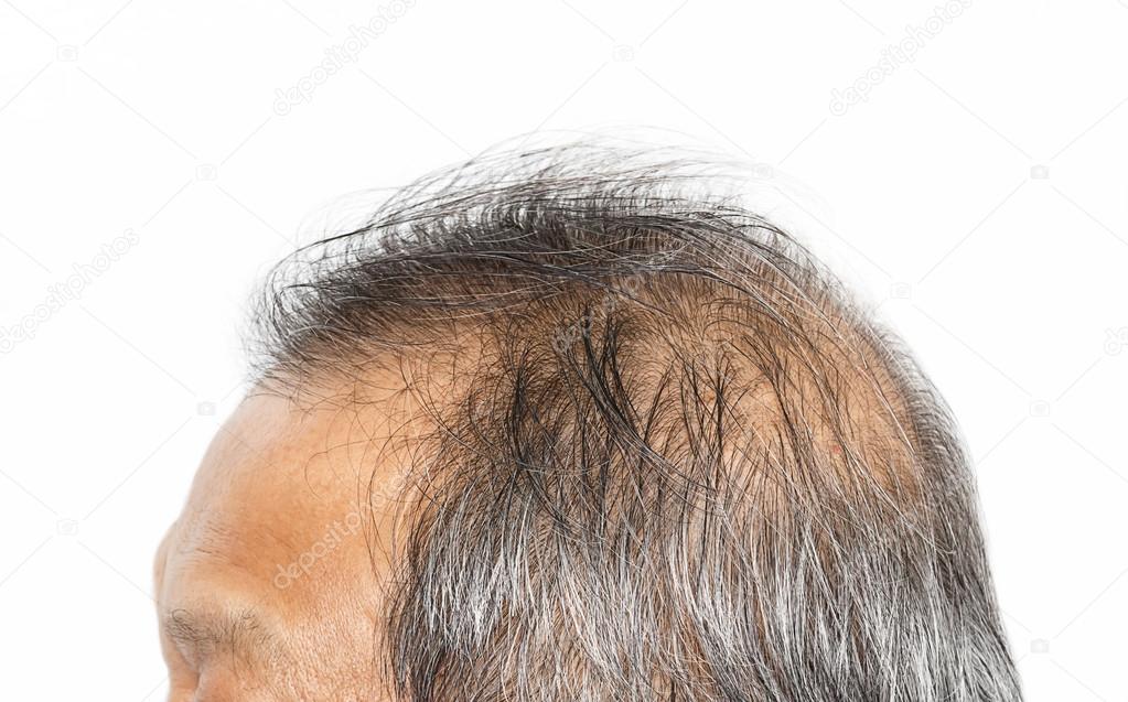 wypadanie włosów meskie