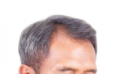 Hair loss and grey hair, Male head with hair loss symptoms front side. stock vector