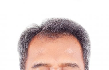 hair loss and grey hair, Male head with hair loss symptoms front