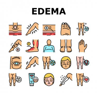 Edema Disease Symptom Collection Icons Set Vector. Venous And Fatty, Lymphatic And Hypoproteinemic, Allergic And Heart Edema Health Problem Concept Linear Pictograms. Contour Color Illustrations icon