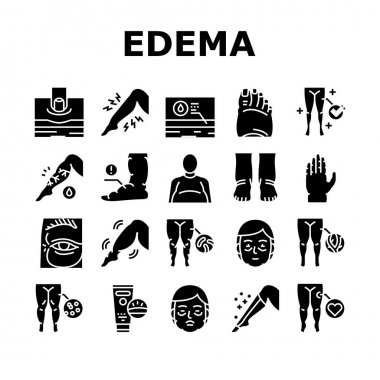 Edema Disease Symptom Collection Icons Set Vector. Venous And Fatty, Lymphatic And Hypoproteinemic, Allergic And Heart Edema Health Problem Glyph Pictograms Black Illustrations icon
