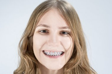 Caucasian Teenage Girl Showing Her Teeth Brackets. Posing Indoors