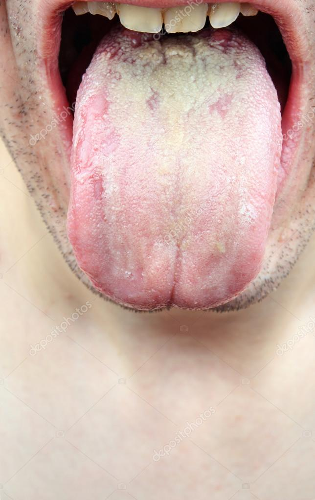 infektion på tungan