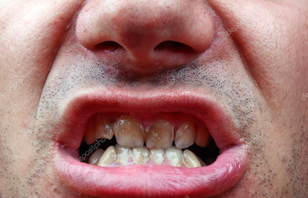 Tartar and tooth decay — Stock Photo © Adam88xxx #52819251